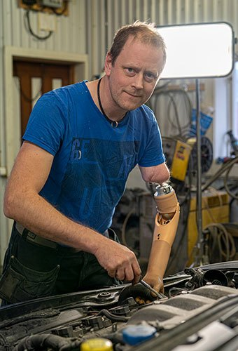 One of the long-time users of the new prosthetic arm