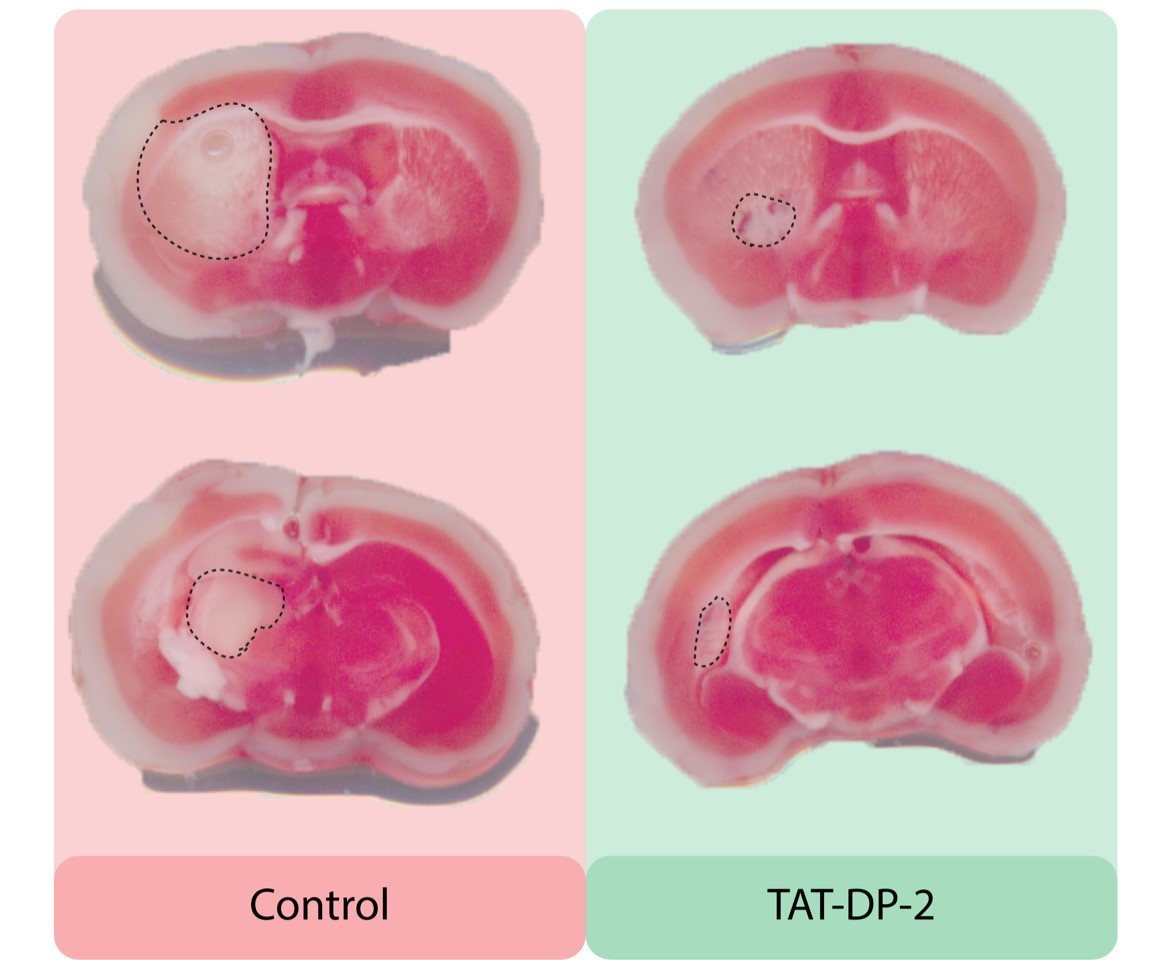 A comparison of neuron damage (circled) in the brain after a stroke: left are untreated mice, and right are those that had a new drug called TAT-DP-2