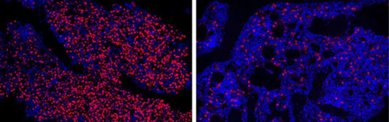 Microscope images of bone marrow from mice with multiple myeloma – the red dots represent IRF4 protein. Left shows a control mouse, compared to the right image of a treated mouse with far less IRF4.